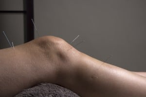 Acupuncture needles in knee